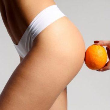 Cellulite 2.0